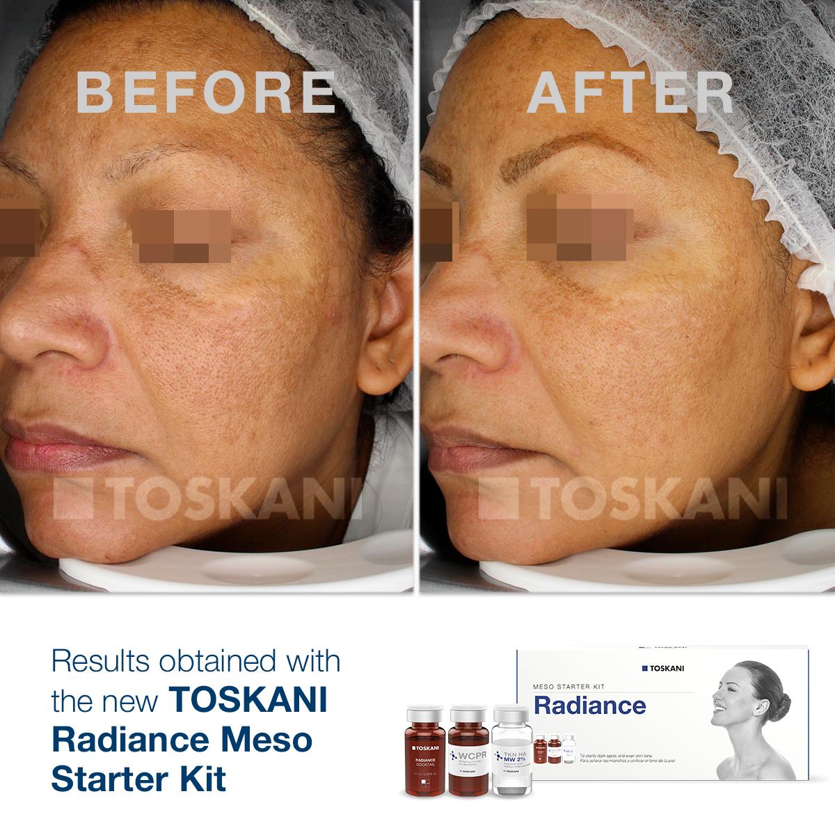 TKN_StarterKit_Radiance3_before-after