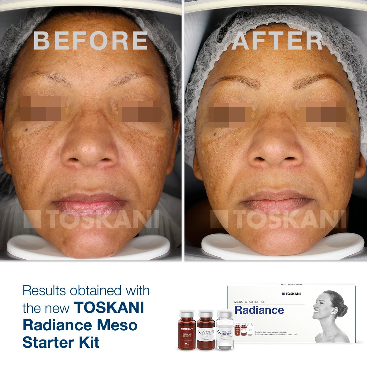 TKN_StarterKit_Radiance1_before-after