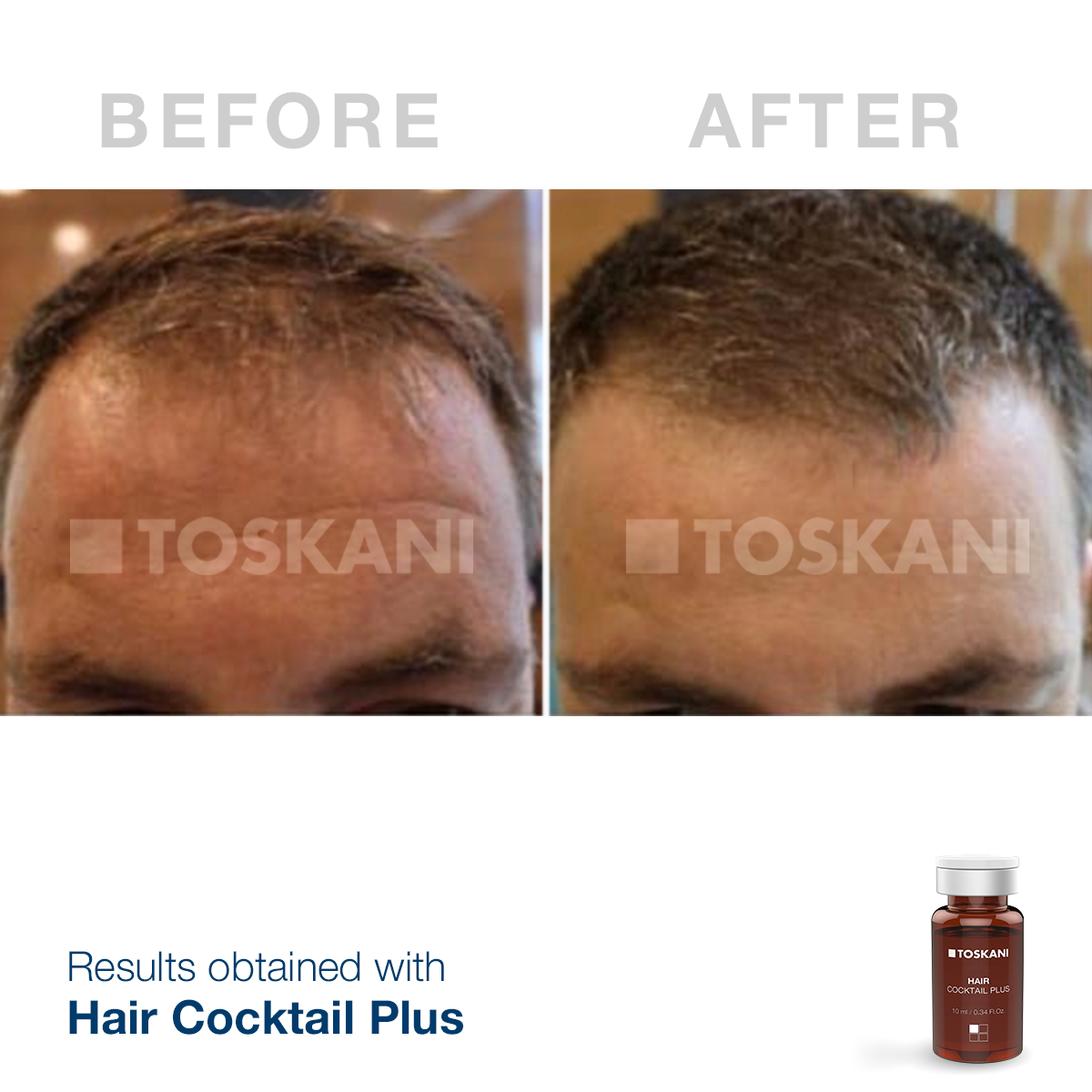 TKN_HairCocktailPlus_before-after