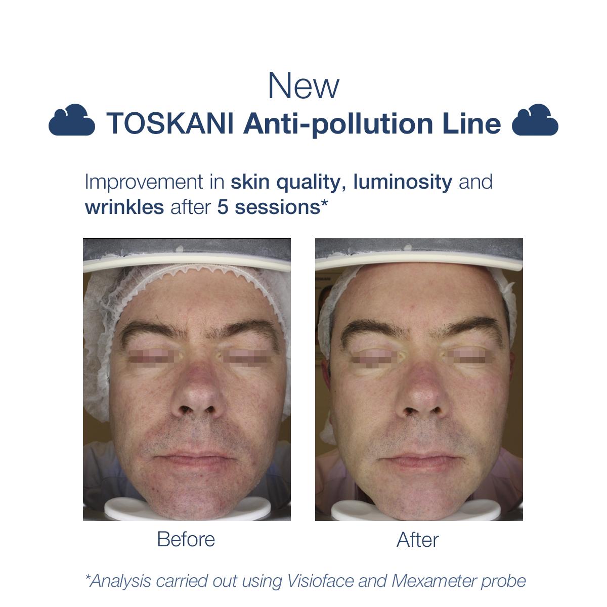TKN_antipollutionline_b-a_4