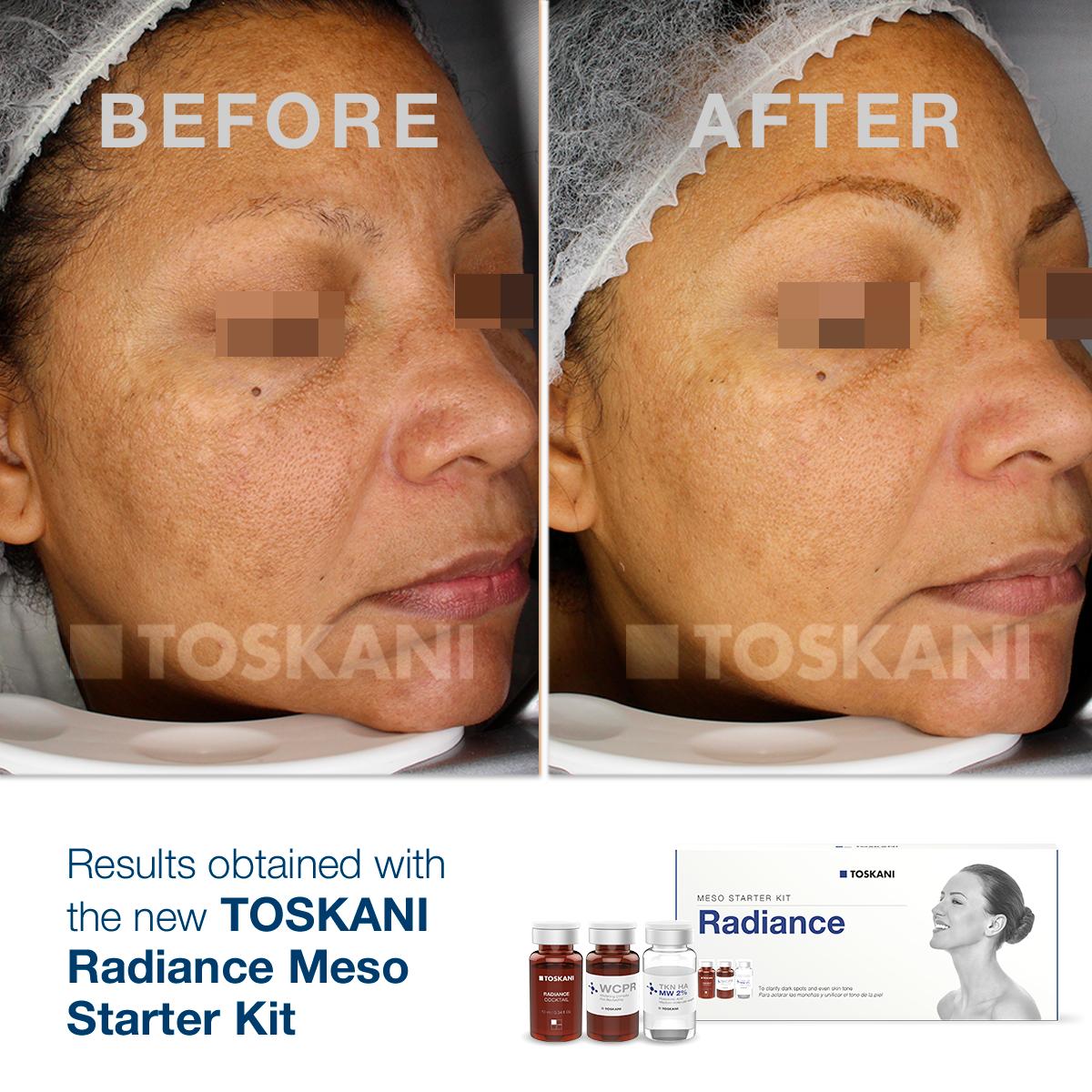 TKN_StarterKit_Radiance2_before-after