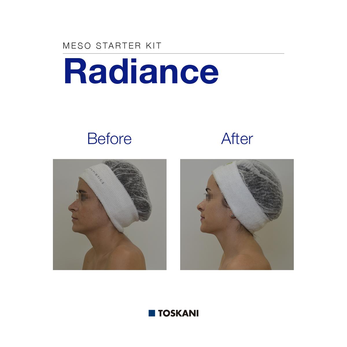 TKN_Radiance_B_A