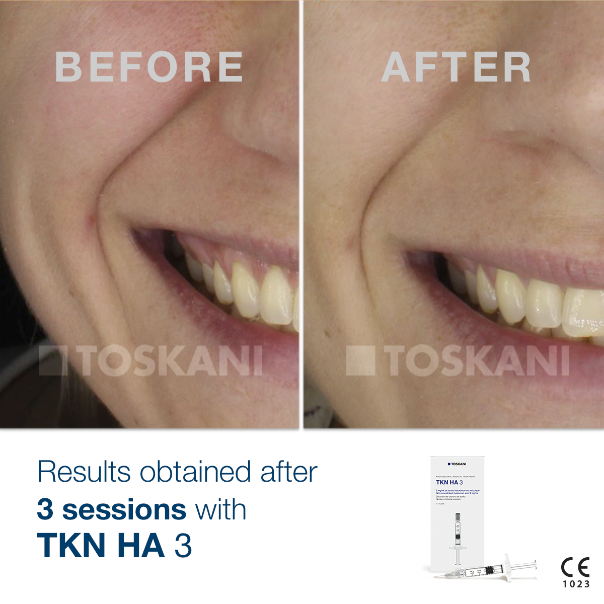 TKN_HA-3_before-after_4